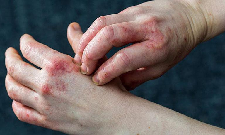 Các cách điều trị mụn nước ở tay hiệu quả 1